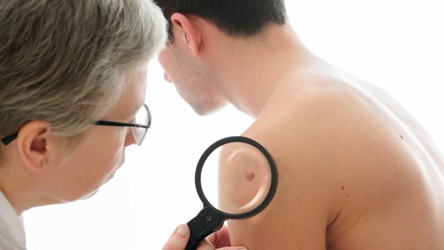 Cientistas revelam forma de tratar o tipo de cancro da pele mais fatal