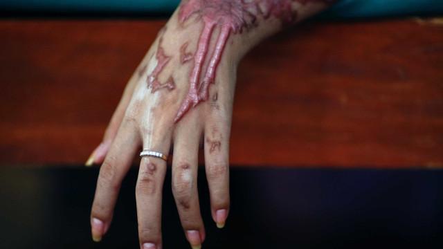 Mulher indiana atacada com ácido pela quinta vez desde 2008