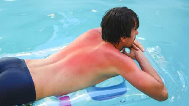 Nunca desvalorize os escaldões, o melanoma mata