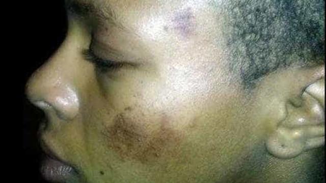 Polícia agride rapariga que confundiu com suspeito