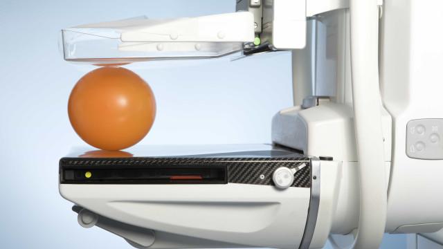 Tudo o que precisa de saber antes da primeira mamografia