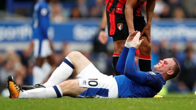 A cara de Rooney ficou neste estado depois de uma cotovelada