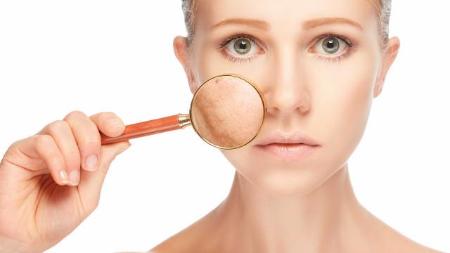 Estes são os problemas de pele que mais causam stress emocional