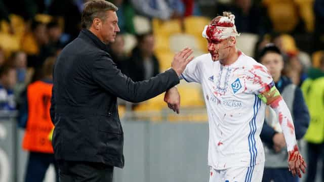 Vida deixou Dínamo Kiev-Young Boys coberto de sangue
