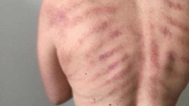 Terapeuta mostra fotos das costas de uma cabeleireira. Tornaram-se virais