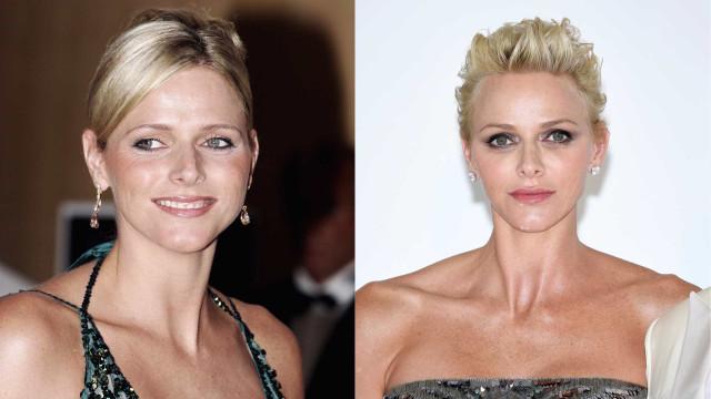 As mudanças no rosto de Charlene do Mónaco após cirurgias plásticas