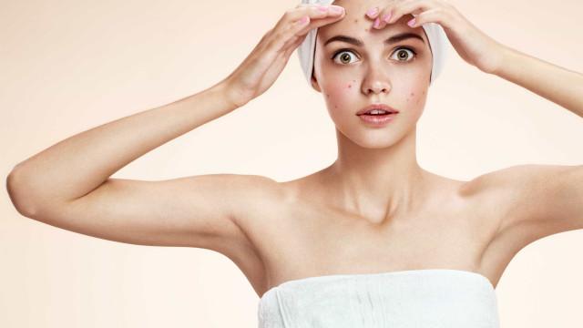 Há mesmo uma ligação entre a acne e a depressão. Palavra de ciência