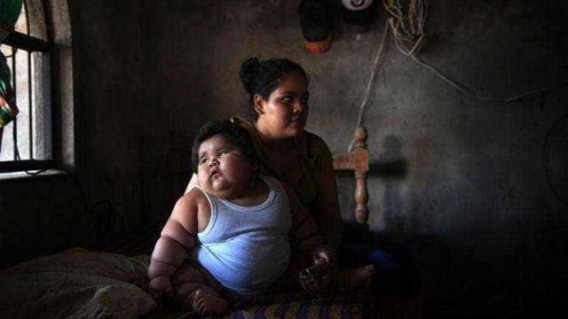 O mistério do bebé mexicano de 10 meses que pesa 28 quilos