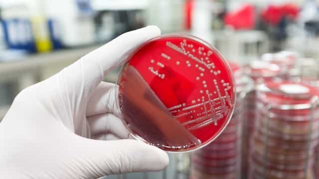 Assim se podem combater as superbactérias