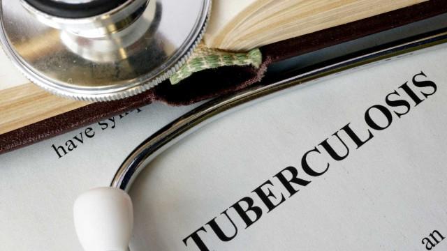 Tuberculose matou 1,3 milhões de pessoas em 2017 mas número diminui