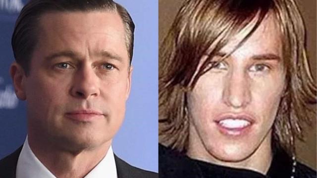 Gémeos gastam 16 mil euros em plásticas para ficarem iguais a Brad Pitt