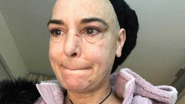 """Sinéad O'Connor vive novo drama: """"O meu filho de 30 anos bateu-me"""""""