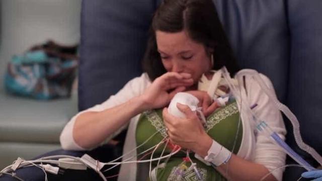 Lembra-se de Ward Miles, o bebé prematuro? Agora está assim...