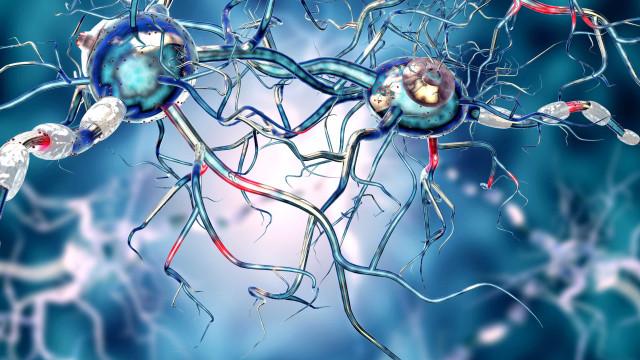 Ciência dá o primeiro passo no 'bloqueio' da doença de Huntington