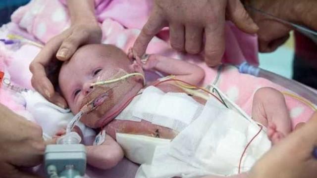 Recém-nascida com coração fora do corpo sobrevive a três cirurgias