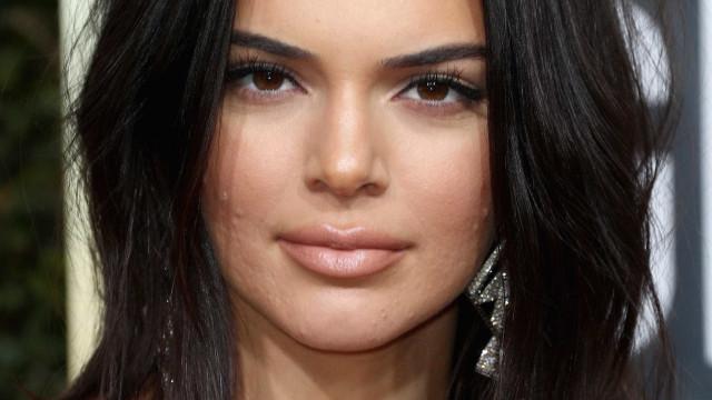 Fãs falam da acne no rosto de Kendall Jenner. Modelo responde à letra