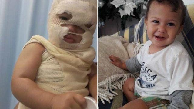 Criança de um ano fica desfigurada depois de cafeteira lhe cair em cima