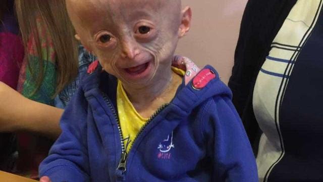 Morreu menina com doença rara que envelhecia oito vezes mais rápido