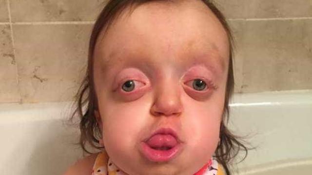 """Ryley tem doença rara e é gozada na rua. """"Parece um 'alien'"""""""