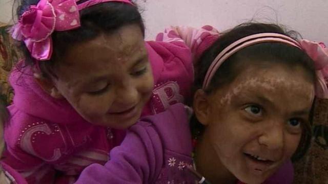 """Irmãs sírias com rosto queimado na guerra. """"Quero ser bonita como antes"""""""
