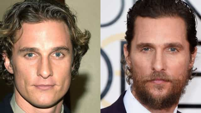 Barba: As mudanças drásticas dos famosos