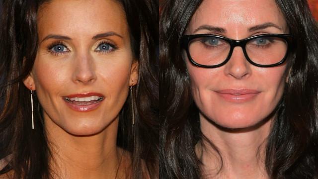 Antes e depois: Veja a transformação das famosas que usaram botox