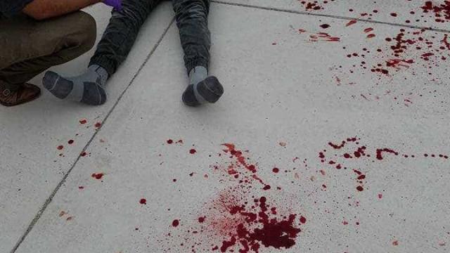 Menino violentamente agredido na escola depois de pedir ajuda a professor