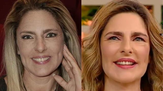 "Após o luto, Paula Marcelo faz cirurgia plástica: ""Quero começar de novo"""