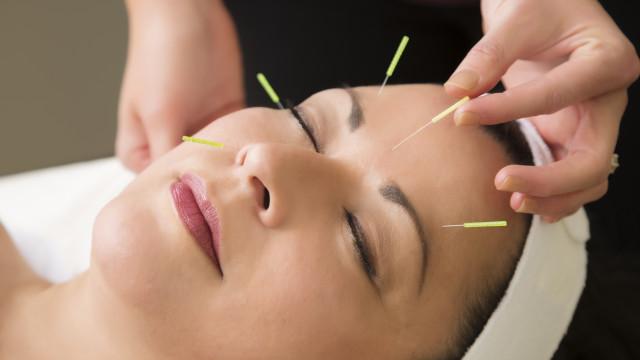 A acupuntura não serve para nada, dizem cientistas