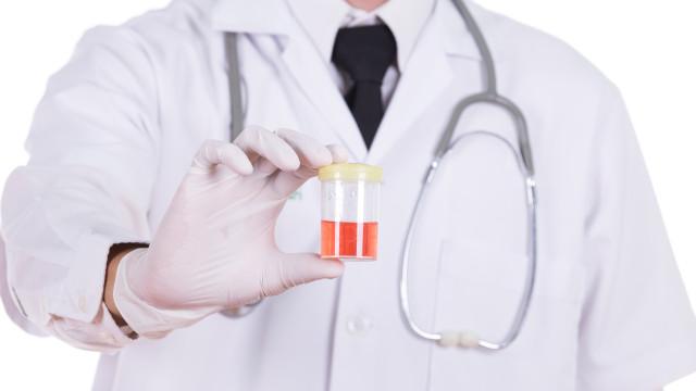 O que a cor da urina diz sobre a sua saúde