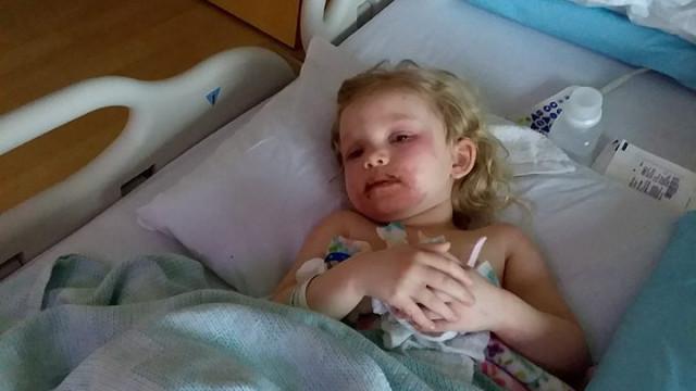 Menina hospitalizada por causa de conjunto de maquilhagem infantil