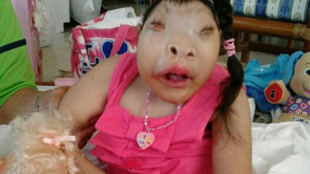 Após superar todas as expetativas, morreu 'bebé milagre'