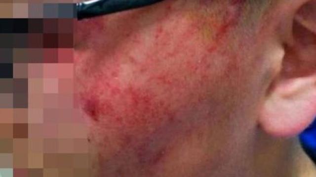Professora deixa aluno com ferimentos graves após dar-lhe 12 bofetadas