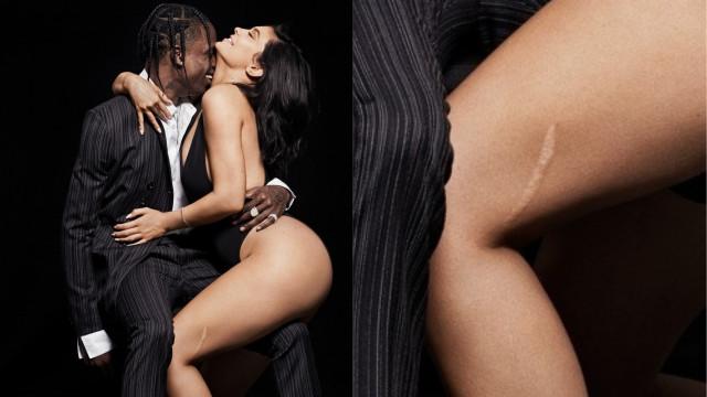 Kylie Jenner fala sobre acidente que provocou a sua cicatriz na perna