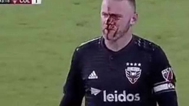 Rooney parte o nariz e as imagens arrepiam