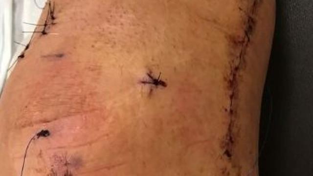 Ibrahimovic recorda lesão e partilha uma imagem do joelho