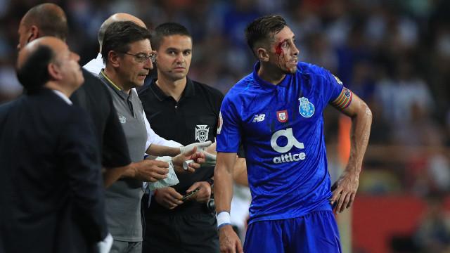 """FC Porto volta a criticar arbitragem da Supertaça e pede """"respeito"""""""