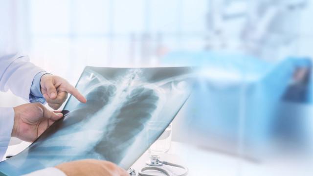 Investigadores descobrem proteínas chave associadas ao cancro no pulmão
