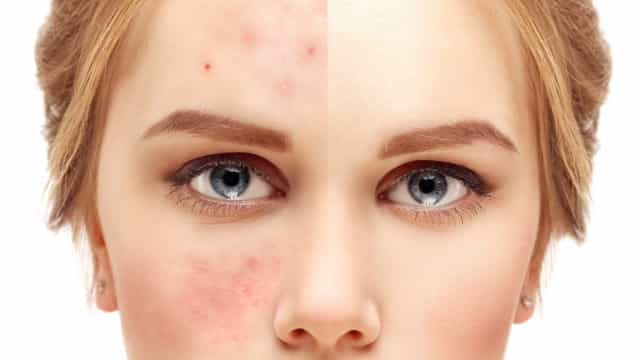 Queratose pilar: Conheça a doença de pele que afeta 80% dos jovens