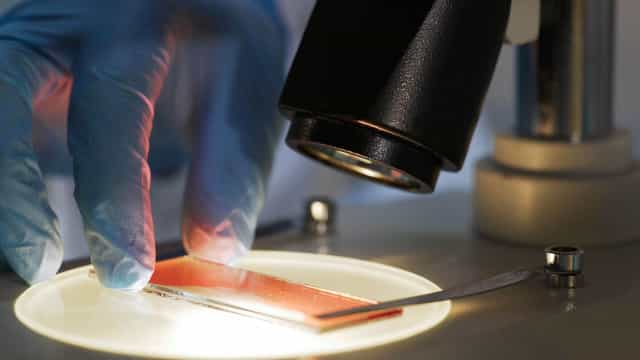 E se a hemofilia tiver cura? Especialistas aproximam-se desta hipótese