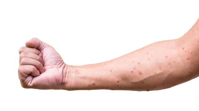 Medo de epidemia: Vírus das 'bexigas loucas' chega à Europa