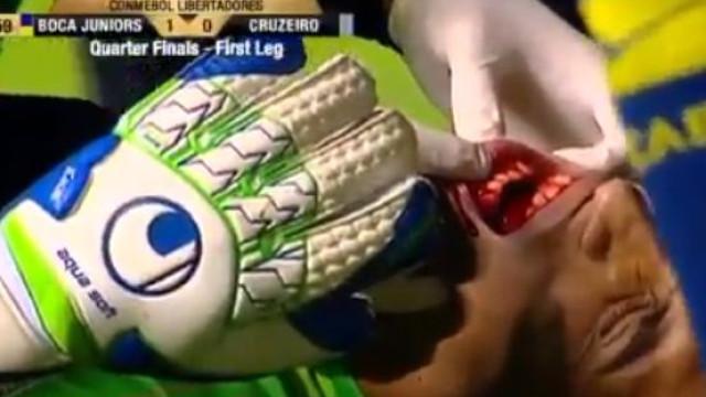 Guarda-redes do Boca ficou com maxilar fraturado após choque com defesa