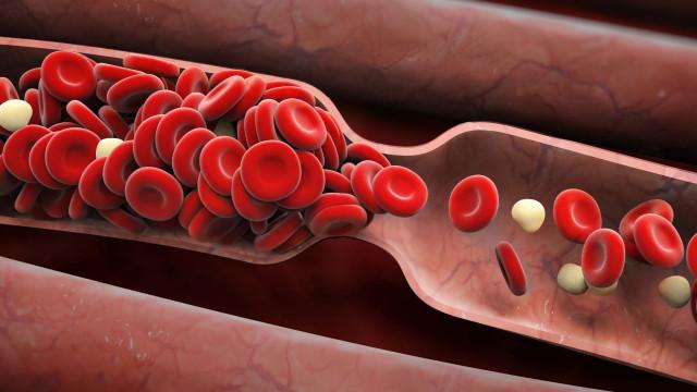Uma em cada quatro pessoas morre de doenças relacionadas com a trombose