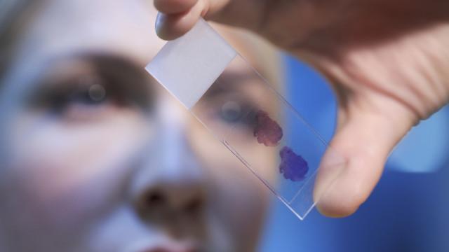 Criado dispositivo inovador para determinação de grupo sanguíneo