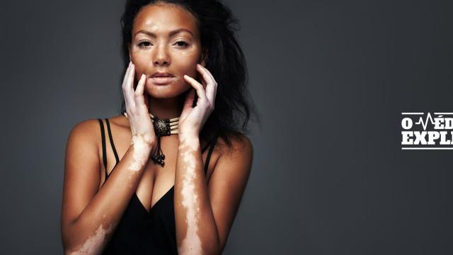O médico explica: Tudo o que deve saber sobre o vitiligo
