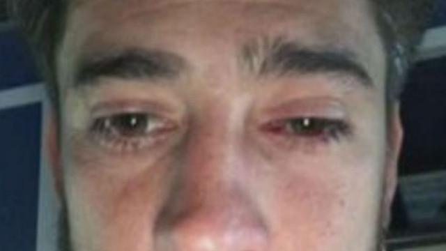 Arrepiante: Pablo Pérez com vidros no olho e um corte na perna
