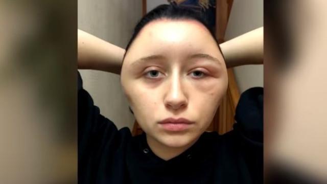 Temeu pela vida após reação a tinta de cabelo que a deixou desfigurada