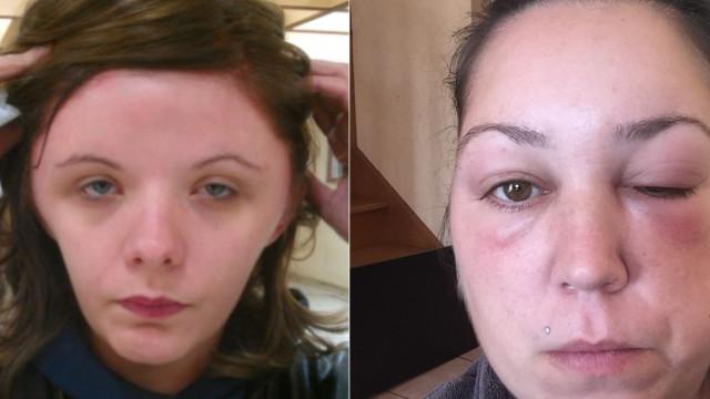 Alergia a tinta de cabelo: Após Estelle, outras mulheres denunciaram