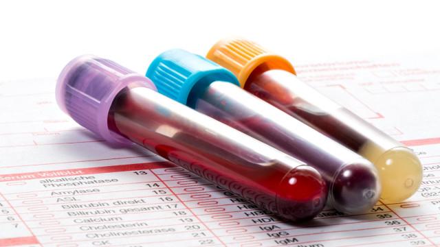 Exame revolucionário deteta em 10 minutos se indivíduos têm cancro