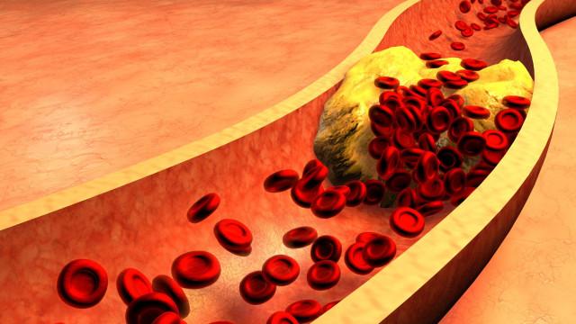 Atenção, se tem o colesterol alto não subestime estes perigosos sintomas